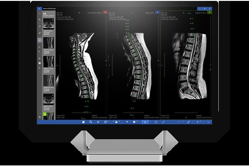 Features - Athena DICOM Expert - Medical Harbour