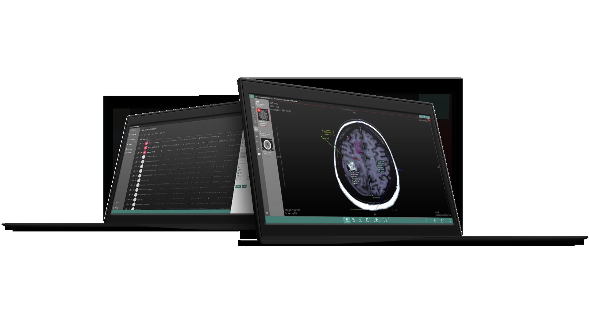 Athena DICOM Essential - Medical Harbour - DICOM Viewer