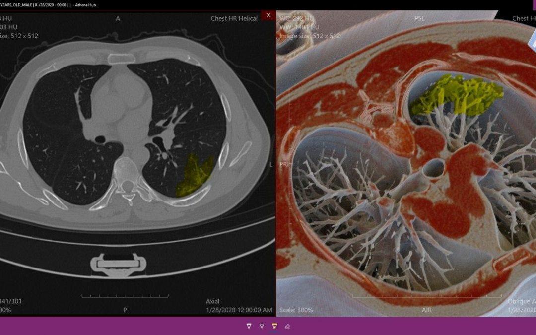 COVID-19: como a doença está afetando nosso sistema respiratório
